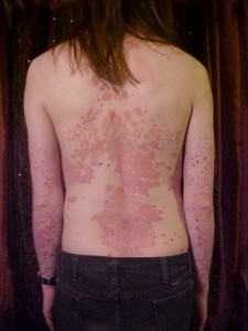 psoriasis and celiac disease