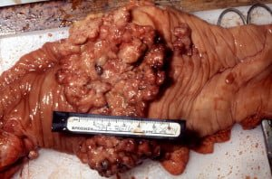 Section of small bowel surgically removed for adenocarcinoma that grew through the wall. By: CDC/ Dr. Edwin P. Ewing, Jr.