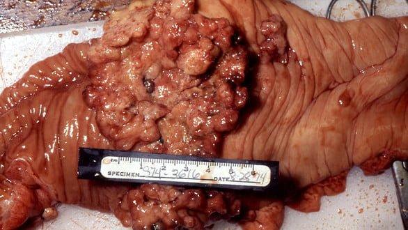 Adenocarcinoma Of Small Intestine Cancer Gluten Free