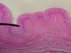 Microscopic Photo of Human Vaginal Wall. Courtesy Jpogi at en.wikipedia