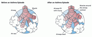 Drawing shows changes in airways during asthma attack. wikipedia