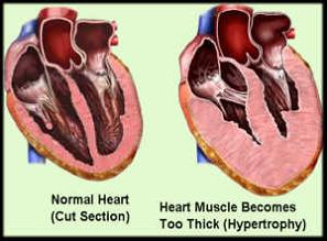 Cardiomegaly-Heart-front