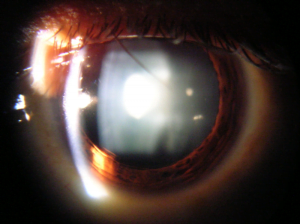 Slit lamp view of cataract in human eye. Courttesy Wikimedia