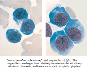 Comparison of normoblast and megaloblast