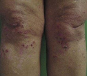 Dermatitis Herpetiformis Eruptions On Knees.