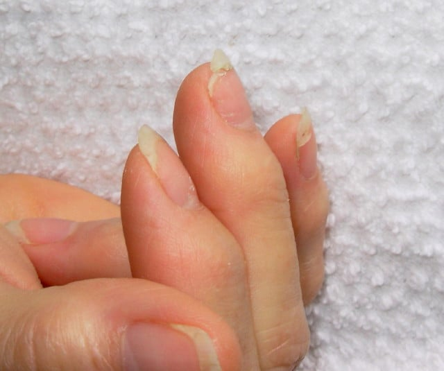 Nails, Dry And Brittle (Chip, Peel, Crack, Break Easily) – Gluten ...