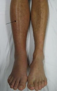 Deep Vein Thrombosis in the Right Leg with Swelling and Redness. Coutesy wikipedia.