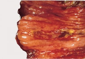EATL of Jejunum.Courtesy pubcan.org