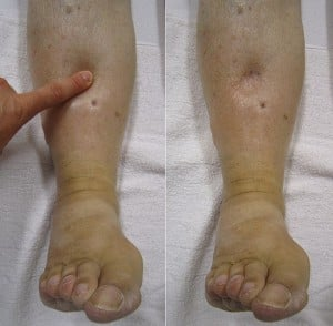 Pitting edema. Right photo shows that indent remains from pressing. Courtesy wikimedia.