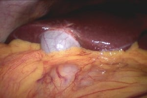 This photo taken during laparoscopy shows the gall bladder (small white organ in middle) surrounded by yellow fat. Liver (dark red organ) is overlying.