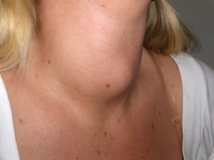 Goiter in Grave's disease. Courtesy Wikimedia.