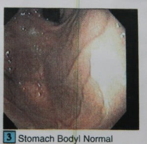 IMG_1007a stomach body normal