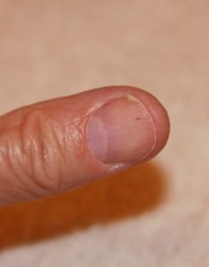 The tiny brown streak is a splinter hemorrhage.