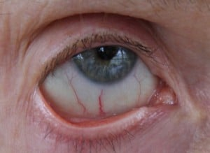 Dry Eye Due to Riboflavin Deficiency. GFW