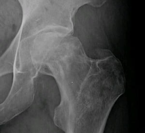 X-ray showing osteonecrosis of the femur. Courtesy Wikimedia.