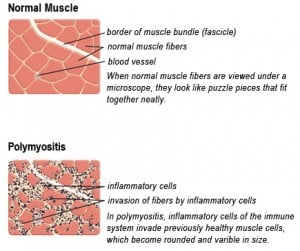 Drawing of Biopsy Showing Muscle Fibers Invaded by Immune Cells. Courtesy MDA.org