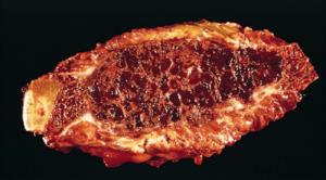 Tissue changes in hyperparathyroidism. Courtesy Quizlet.com