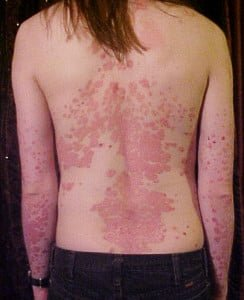 Psoriasis_on_back[1]