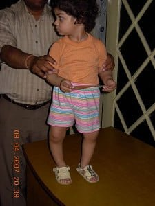 Rickets in a young child. Courtesy of Wikipedia