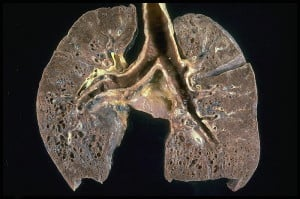 X-ray of lungs in sacroidosis showing honeycoming. Courtesy Wikimedia.