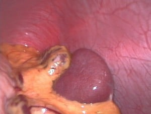 In this photo, the spleen is the darkish oval organ in the lower middle of this photo. In your body, it is located in your upper abdoman to the left of your stomach under your ribs.