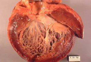 Heart showing dilated cardiomyopathy at autopsy. Courtesy
