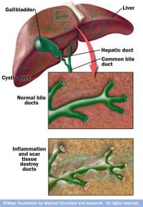biliary system primary biliary cirrhosis