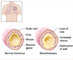 Bronchiectasis Image. Courtesy Quizlet.com