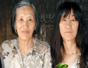 This 21 year-old woman (left) appears as old as her 70 year-old granny (right). Courtesy Prof Dr Chua Chung Nen
