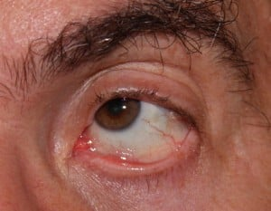 Eye Stabilized with Cyclosporin Drops.