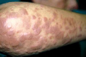 erythema elevatum diutinum of forearm