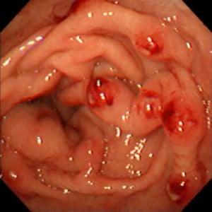 Chronic Gastritis with Hemorrhagic areas. Courtesy Gastrosource2.com