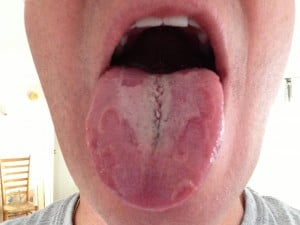 Geographic Tongue Due to Riboflavin Deficiency.