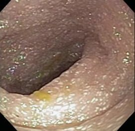 Intestinal Edema in an 11 Month Old Baby. Courtesy: Nature.com