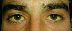 Jaundice, or yellowing of the skin and sclera of eyes.