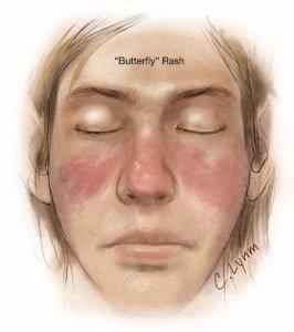 Image showing butterfly rash of SLE. Courtesy JAMA.