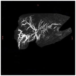 A 3D Image From Magnetic Resonace Cholangiography. NIHMS