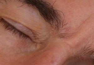 Seborrhea patches at the inner eyebrows. GFW