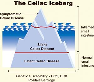 relationship between celiac disease and adhd