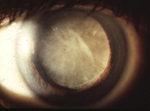 Cataracts Due to Nutrient Deficiencies in Celiac Disease