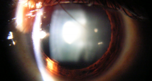 Cataract-Slit_lamp_view_of_Cataract_in_Human_Eye-wikimedia-300x224[1]