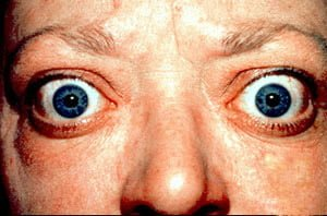 Graves-Proptosis_and_lid_retraction_from_Graves_Disease-wikimedia[1]