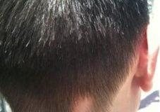 Alopecia-Areata-wikimedia-227x300[3]